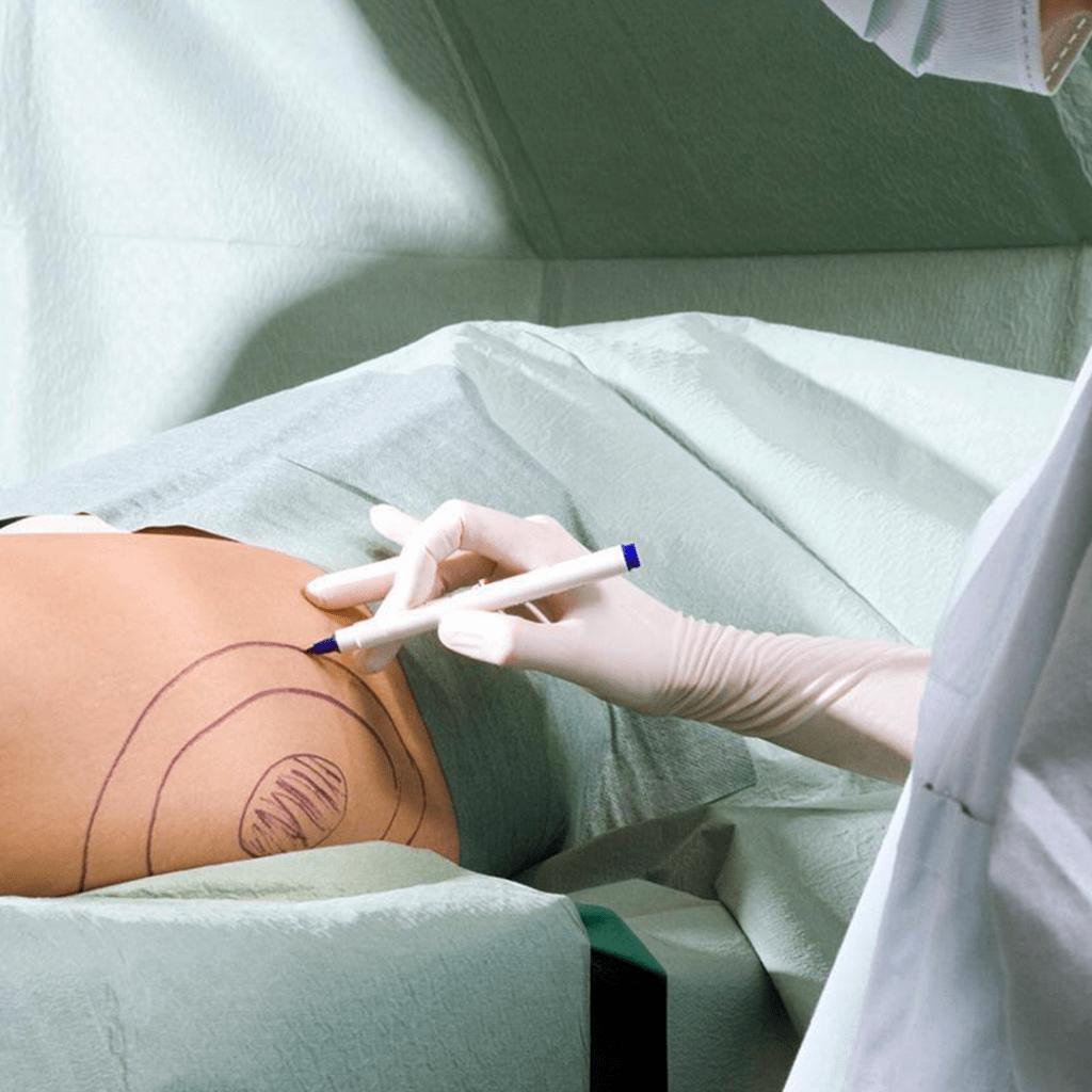 implantimplant ile popo büyütme-başar kaya klinik ankara